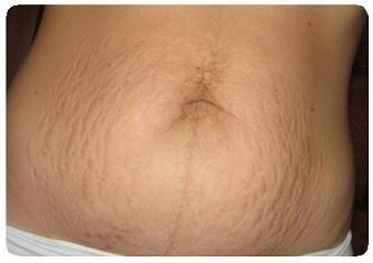 Яблочный уксус и похудение отзывы врачей