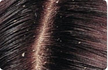 маски для волос восстанавливающие в домашних условиях